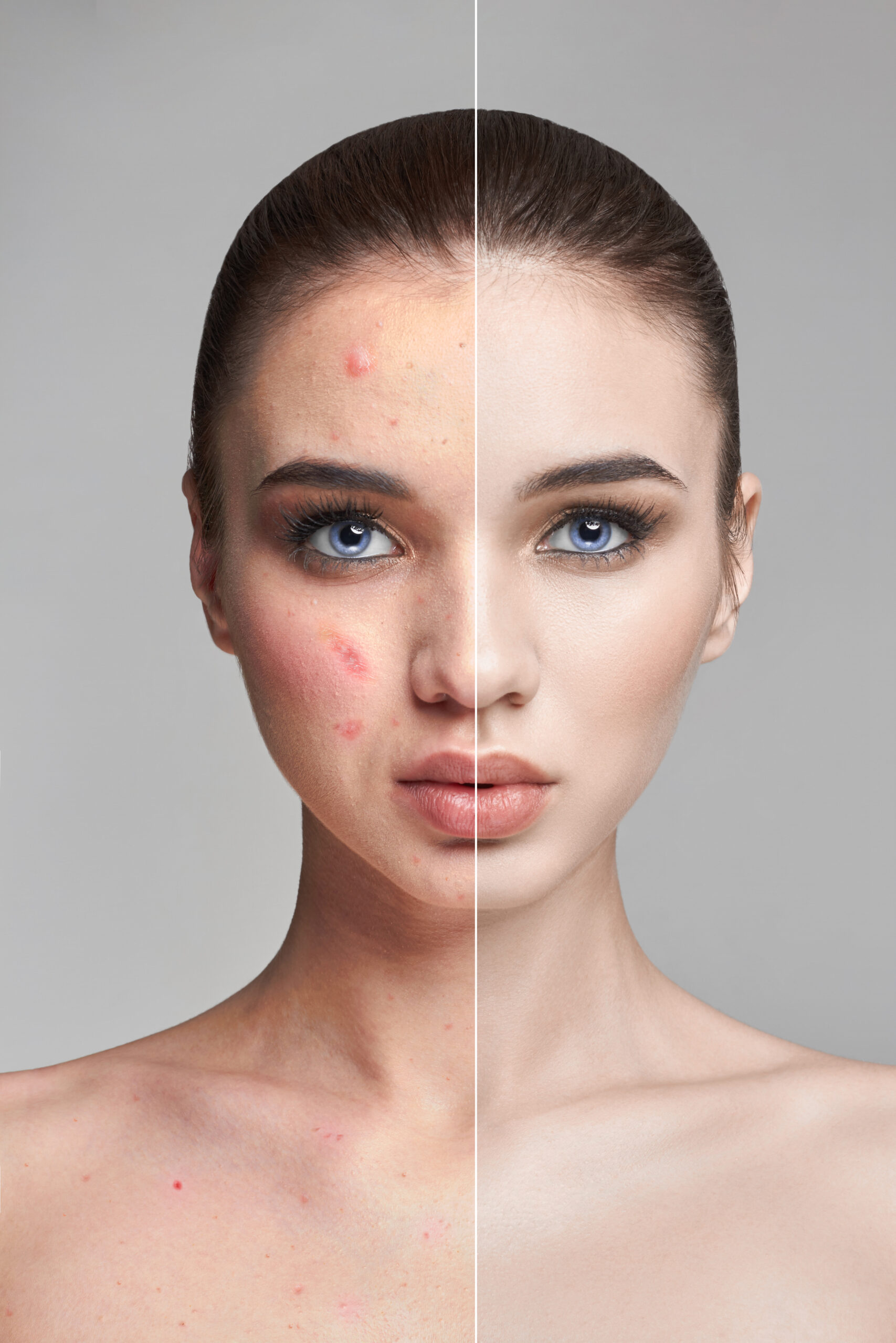 Pimples and acne on the woman's face before and after. Cosmetics to remove pimples and blackheads. Natural natural skin skin. Beautiful woman face closeup, dermatology